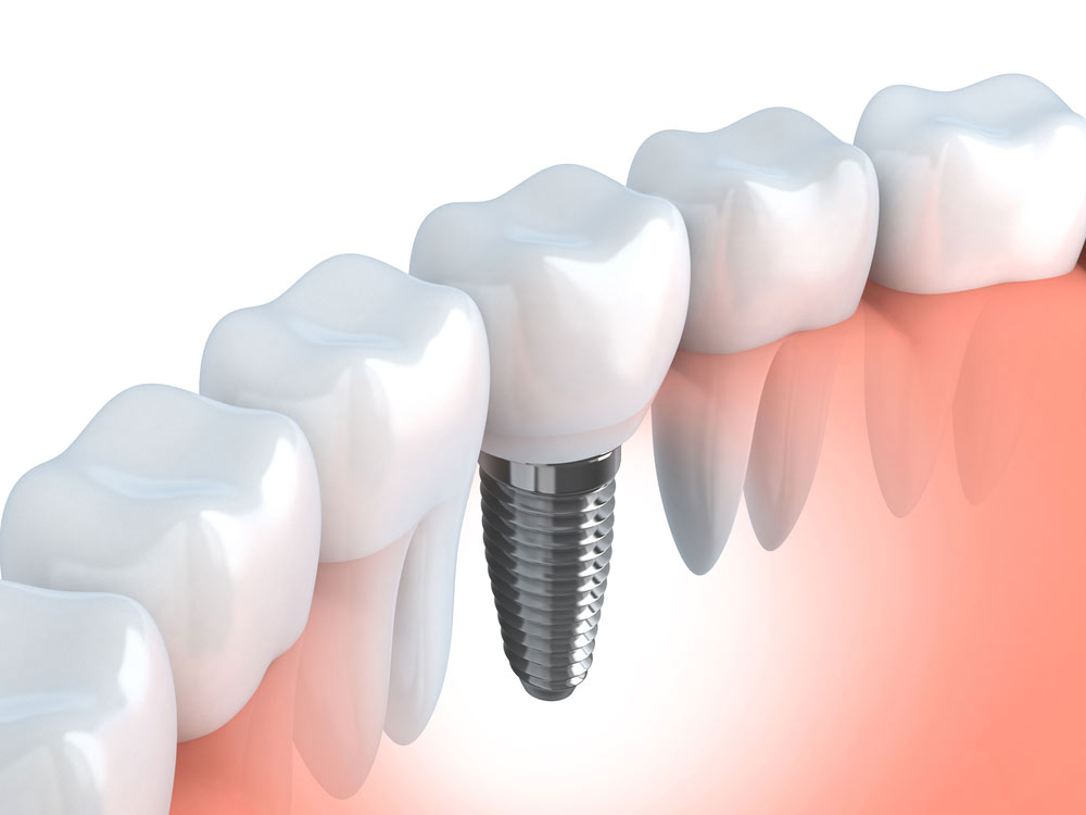 Dental Implants are a treatment available at Dental Health Stop