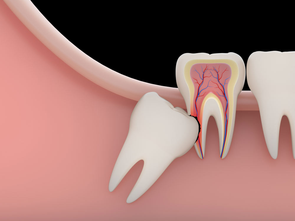 Wisdom tooth removal is a professional treatment available at Dental Health Stop